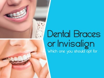 Dental Braces vs Invisalign: Which One You Should Opt For?