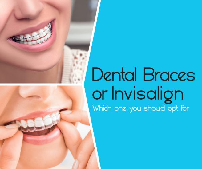 Different between Invisible and Braces